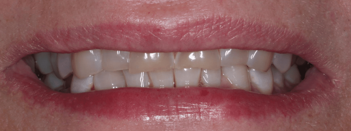 smile makeover - before and after