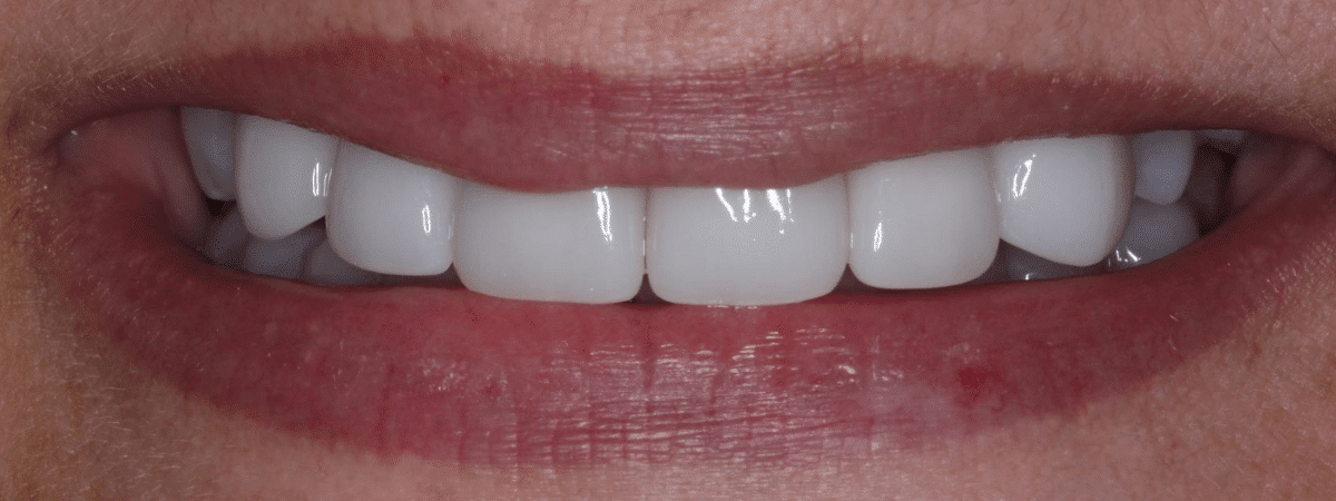 beautiful smile makeover