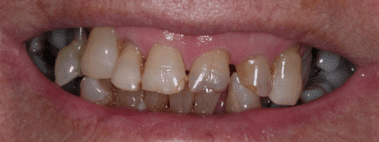 bethlehem GA cosmetic dentistry